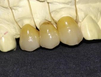 protesi-metal-free1