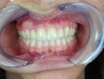 protesi-zirconio-3