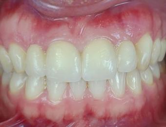 protesi-zirconio-4