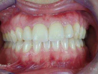 protesi-zirconio-6
